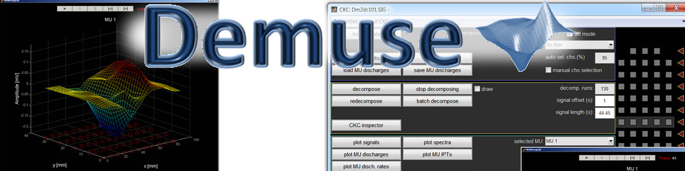 DEMUSE - software for decomposition of multichannel surface electromyograms